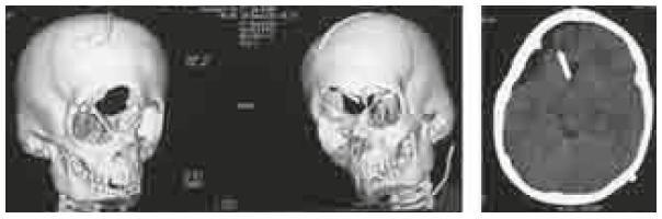 Pacient 1, CT dokumentácia pred plánovaním rekonštrukcie kosteného defektu. Na 3D rekonštrukcii frontálny defekt pokračuje defektom v strope orbity a chýbaním časti krídla nosovej kosti. Rovinný rez dokumentuje takmer vyprázdnené komory a reziduum po subarachnoidálnej cyste, katéter vo frontálnom rohu vpravo je spoločným vyvedením pre oba likvorové priestory.