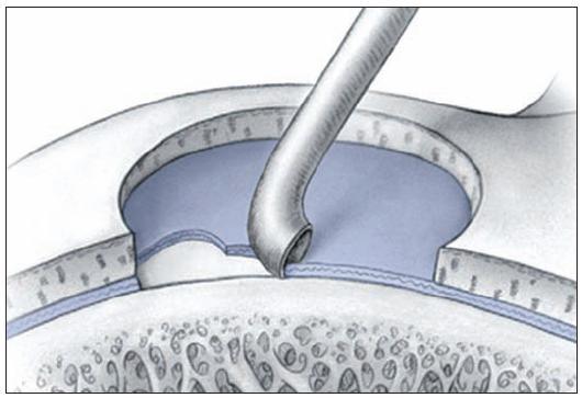 Stimulácia kostnej drene: Mikrofraktúry – súčasťou peroperačnej prípravy je dôkladné obnaženie spodiny defektu (reprodukcia z Mithoefer K, Williams RJ, Potter HG, et al. Chondral resurfacing of articular cartilage defects in the knee with microfracture technique. J Bone Joint Surg Am 2006, 88: 294–304)