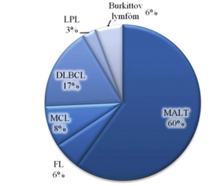 Podiel typov B-NHL v súbore 35 pacientov
