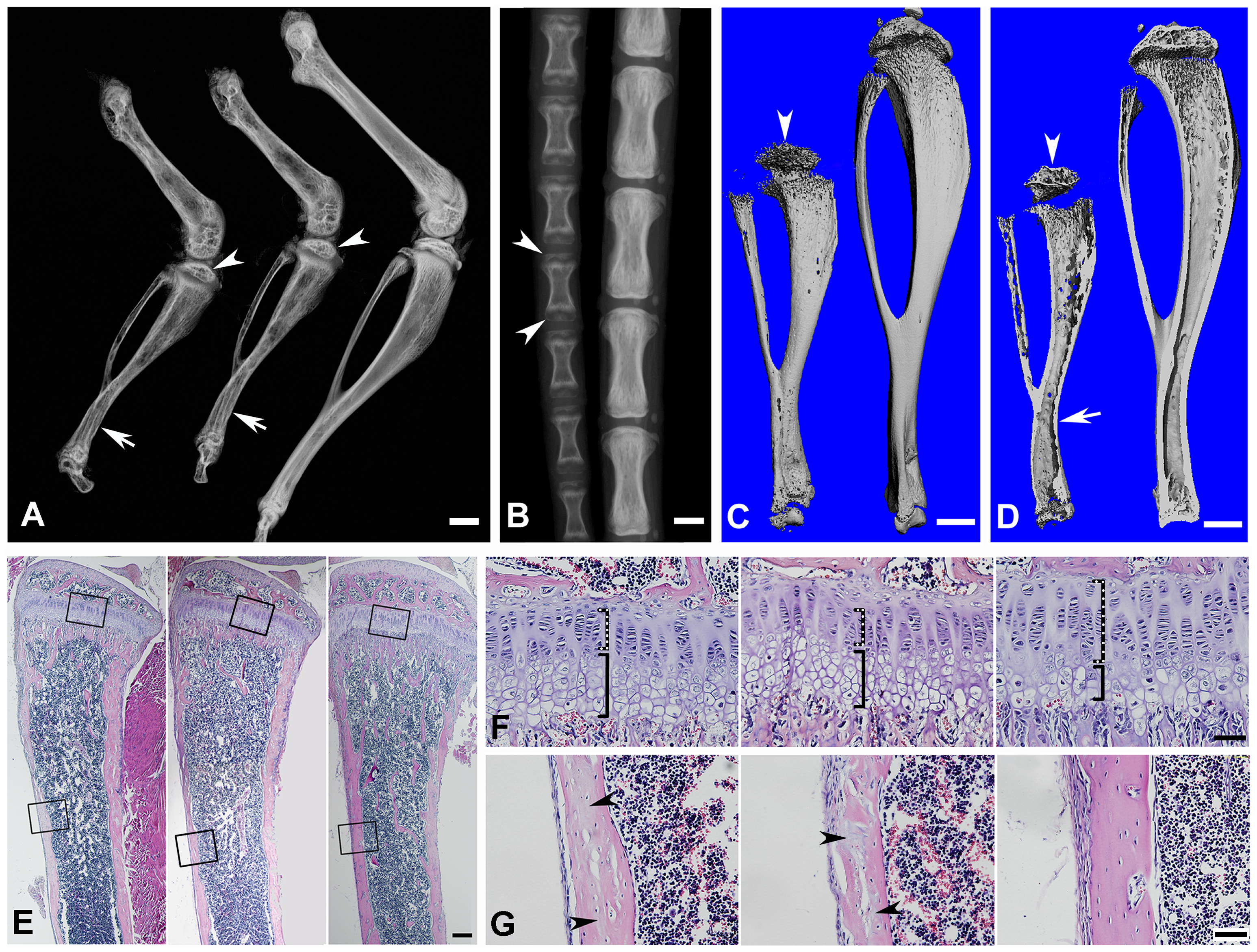 Bone defects in the 6-week-old <i>Fam20c</i>-cKO mice revealed by X-ray and histology.