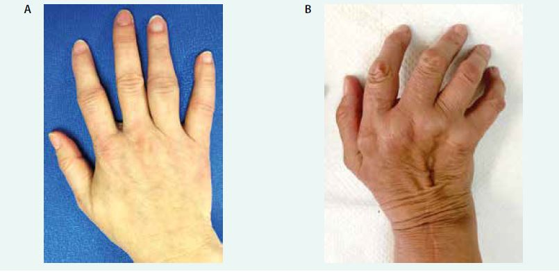 Obr. Klinický obraz revmatoidní artritidy. Časná fáze onemocnění s artritidami ve 2., 4. a 5. proximálním interfalangeálním kloubu (A), pokročilá fáze onemocnění s deformitami kloubů, již po chirurgické rekonstrukci zápěstí a metakarpofalangeálních kloubech (B). Archiv autora