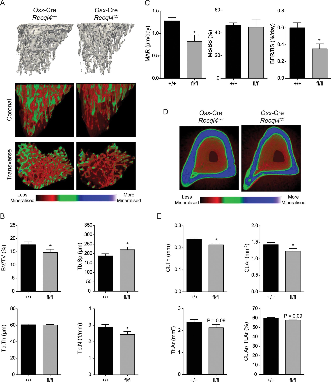 <i>Osx</i>-Cre <i>Recql4</i><sup><i>fl/fl</i></sup> mice have a low bone mass.
