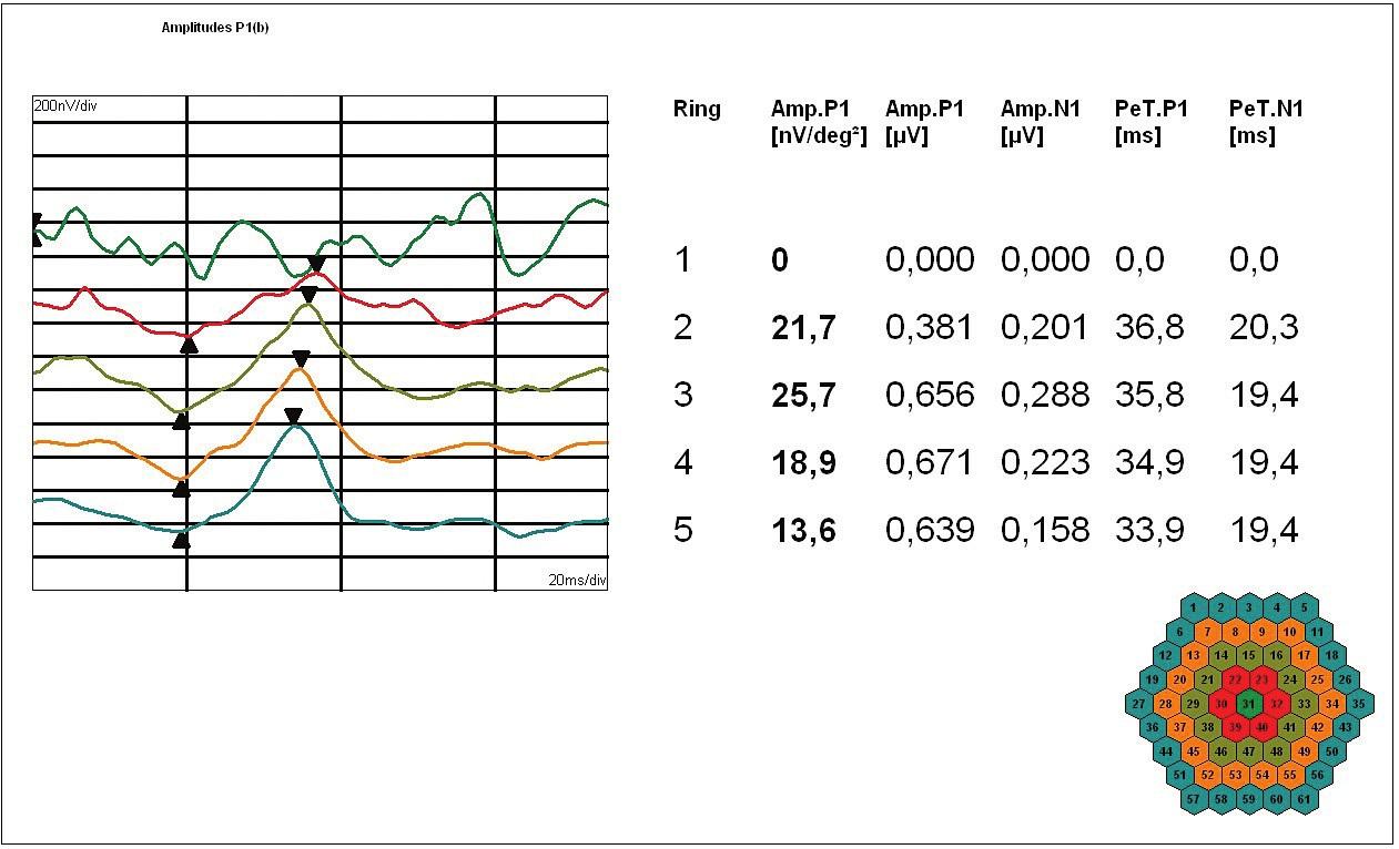 Obr. 3d. MfERG levého oka: Amplitudy [nV/deg2] a latence [ms] pozitivního vrcholu P1; shora reziduální foveolární aktivita a dále průměrné odpovědi v soustředných kruzích kolem foveoly podle vzrůstající vzdálenosti od centra