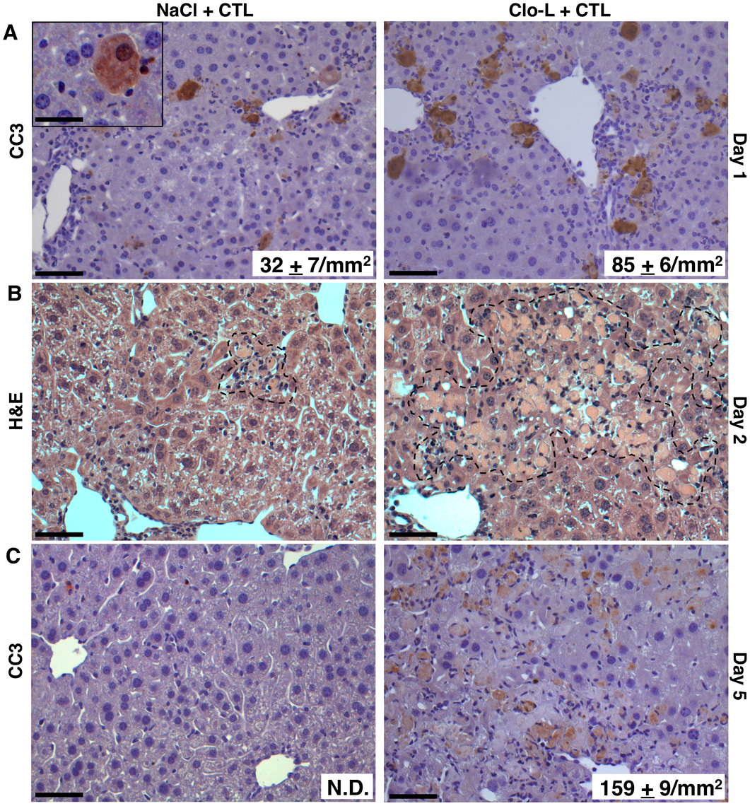 Impaired removal of apoptotic hepatocytes and focal hepatocellular necrosis in Clo-L-treated mice.
