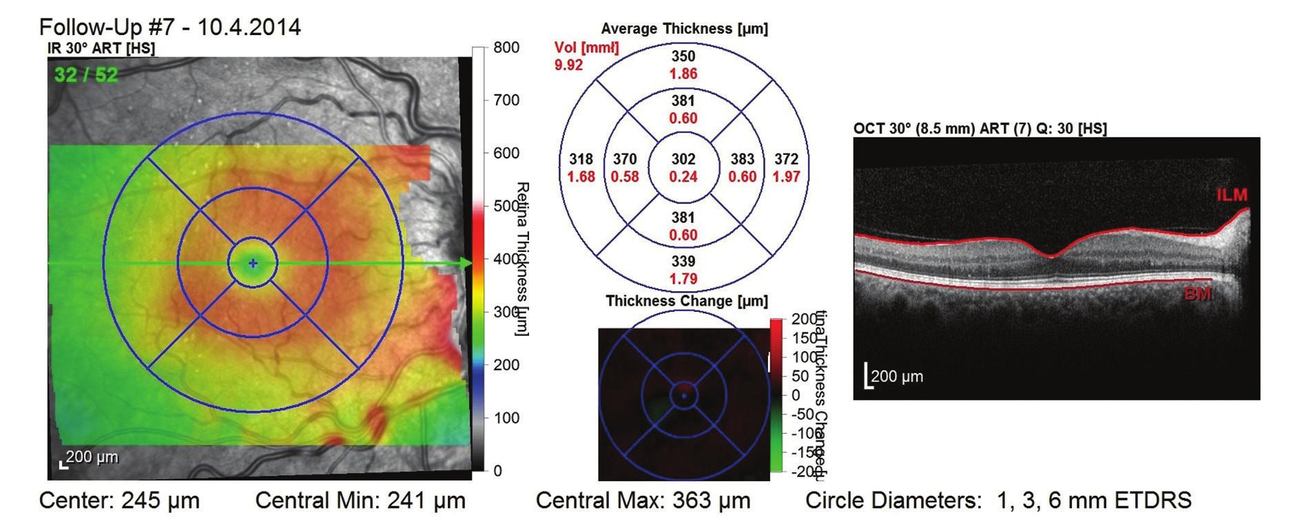 OCT snímek po 1. roce léčby (celkem 5 aplikací) – regrese ME, dobrá morfologie zevních vrstev neuroretiny, CRT 302 μm a NKZO 81 písmen ETDRS optotypu