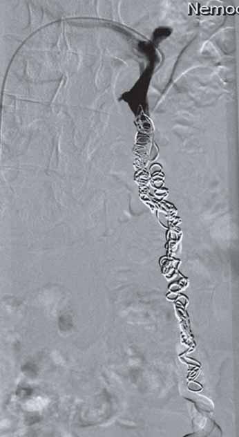 Endovenózní ablace. Embolizace levostranné ovariální žíly spirálami.