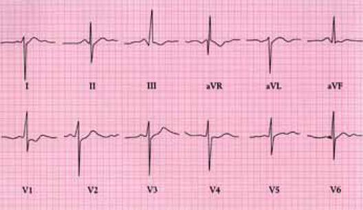 EKG u Fallotovy tetralogie ukazuje hypertrofii pravé komory.