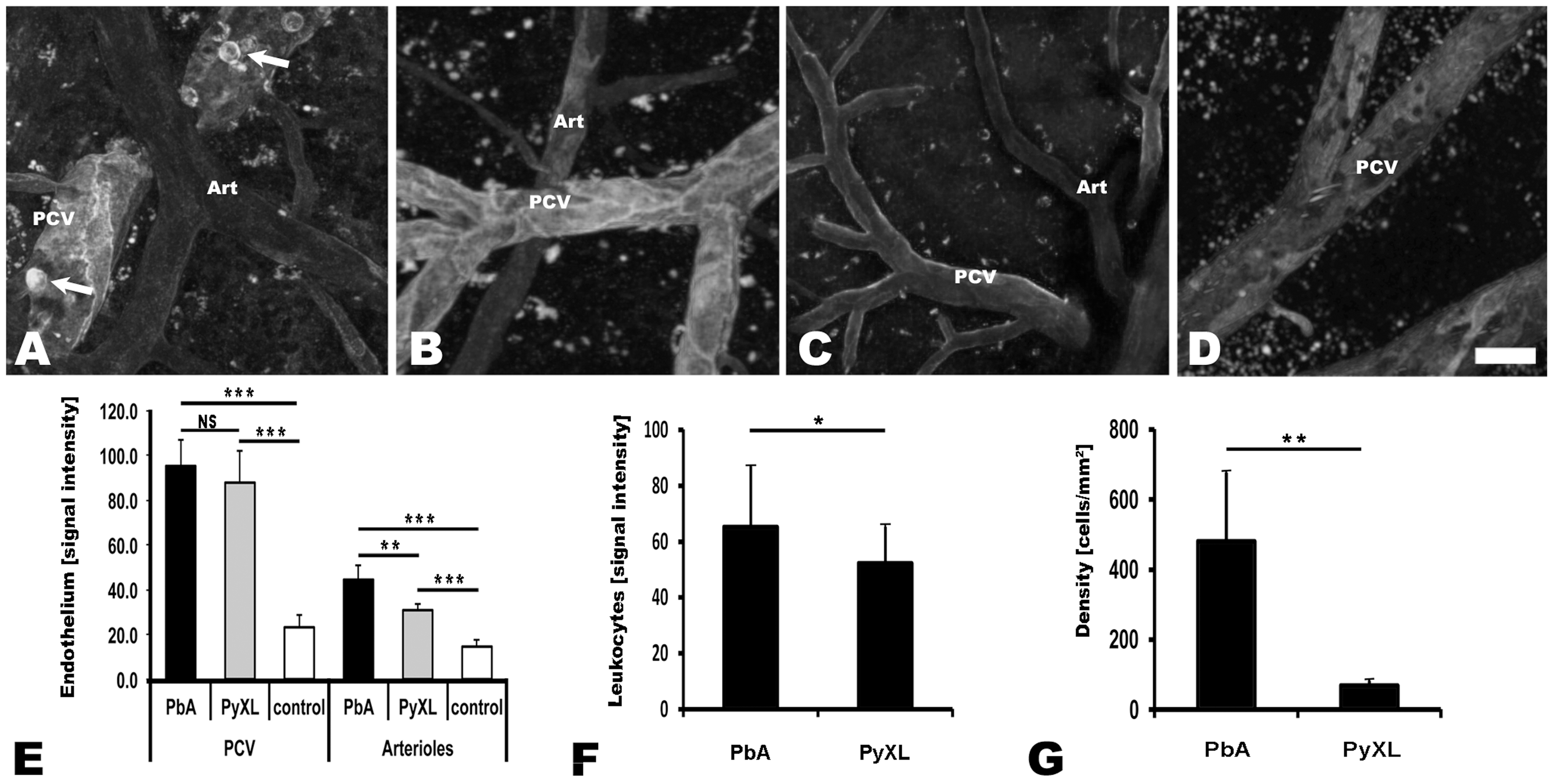 Both ECM and hyperparasitemia are associated with upregulation of endothelial ICAM-1.