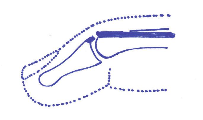 Obr. 2a. Vytržení úponové části extenzoru.