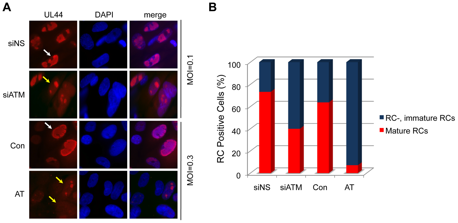 """Reduced formation of """"mature"""" viral replication compartments (RCs) in AT fibroblasts and siATM-transfected HEL fibroblasts."""