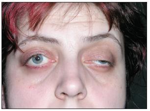 Foto obou očí před provedením tarzorafie – na pravém oku po operaci ptózy, na levém oku ptóza horního víčka