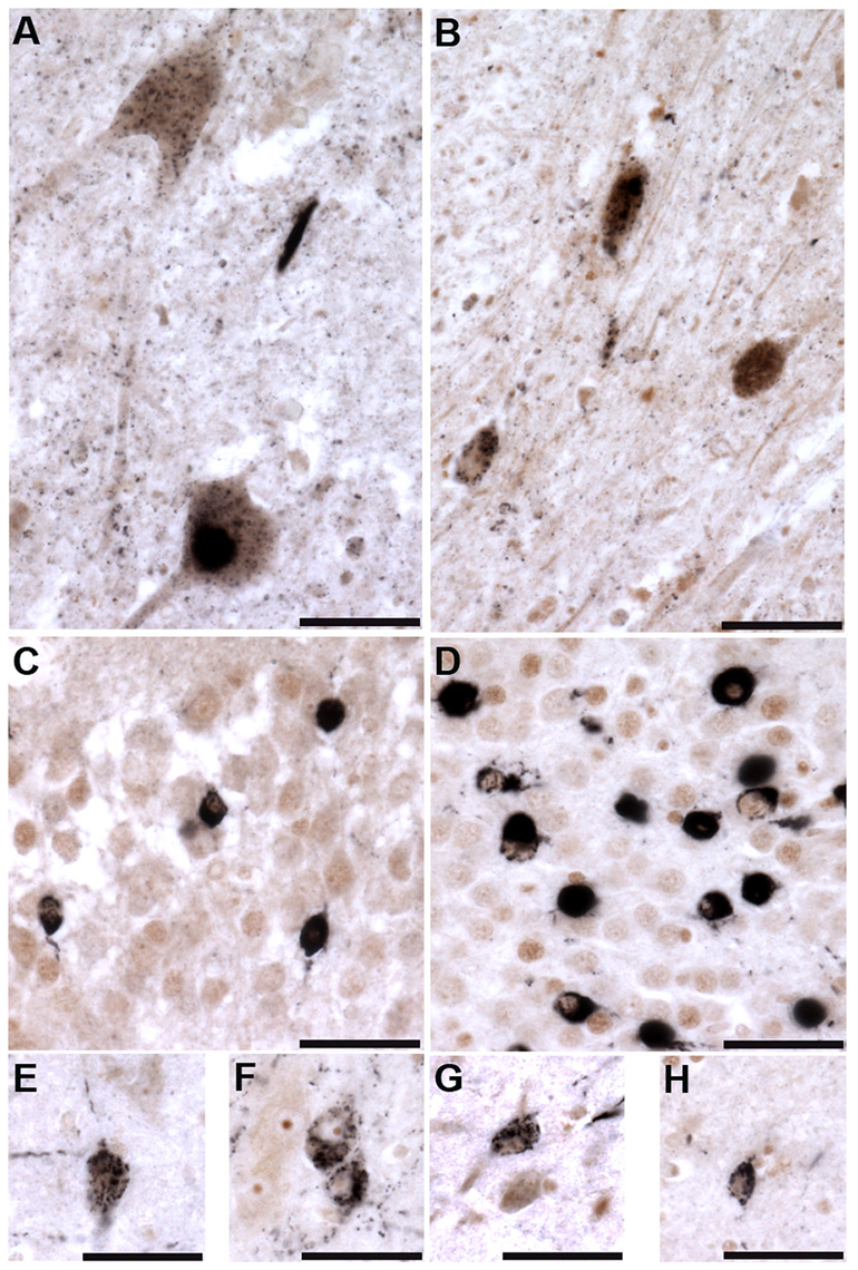 Tau tubulin kinases are co-expressed with phospho-TDP-43 pathology in ALS cases.