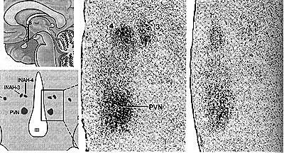 Hypotalamus v sagitální a čelní rovině, poloha intersticiálních jader 3, 4 PVN – paraventrikulární jádro, III – průřez třetí komorou