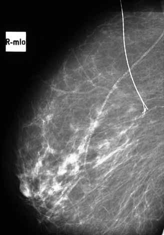 <em>Stereolokalizace</em> výsevu mikrokalcifikací pravé mammy v zevním horním kvadrantu u 41 leté ženy – převaha involuce, vazoskleroza, výsev mikrokalcifikací na rozloze 4 mm, typ mikrokalcifikací maligní – tečkovité + jemně granulární.