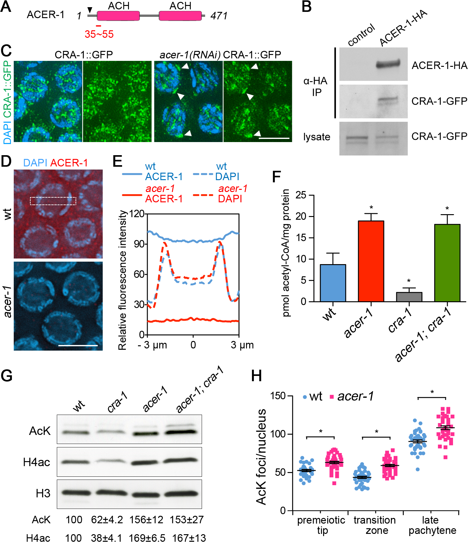 CRA-1 regulates histone acetylation by antagonizing ACER-1.