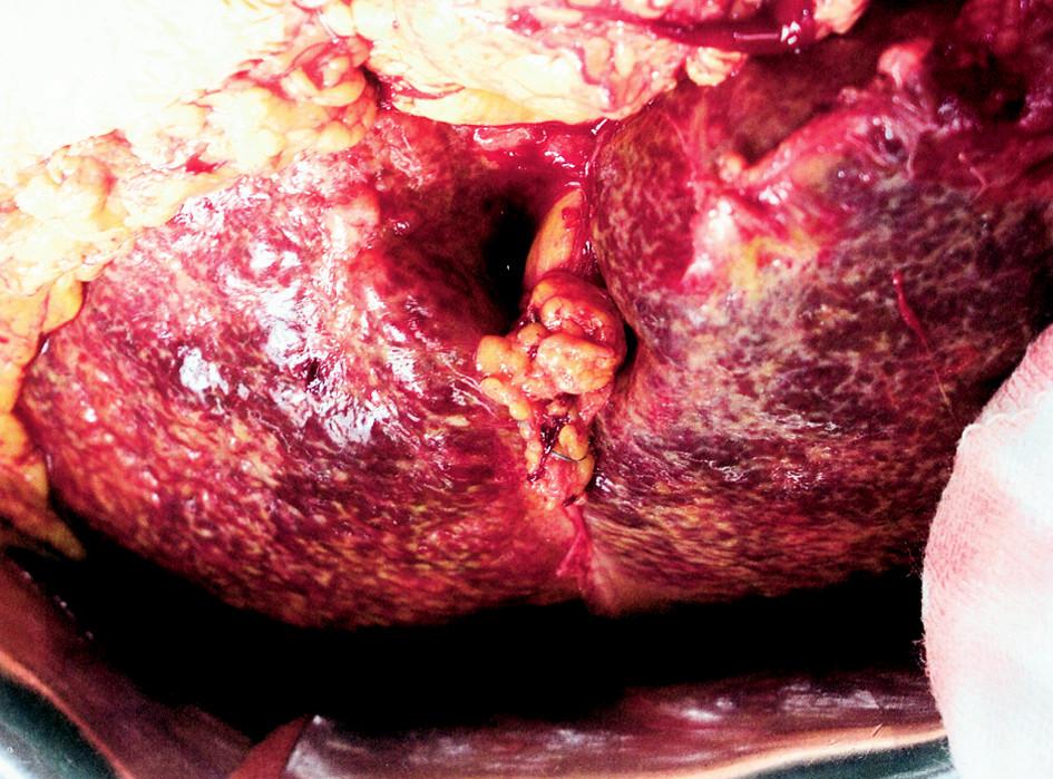 Těžká cirhóza jater s hepatolitiázou v levém laloku Fig. 1. Severe liver cirrhosis with hepatolithiasis in the left liver lobe