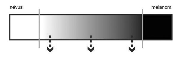 Schéma 1. Mezi névy a melanomy je plynulá škála atypických ML s malou, střední a velkou mírou rizika maligních vlastností (šipky)