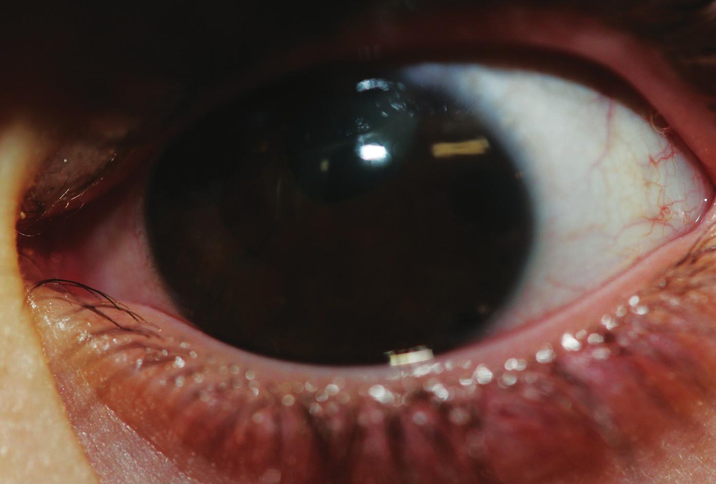 Obraz ľavého oka s totálnou iridektomiou při č. 1 po operácii