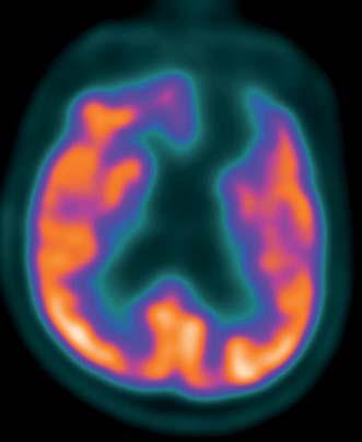 Subtrakční zobrazení FDG PET/CT před podáním zolpidemu. Fig. 1. Subtraction FDG PET CT scan prior to zolpidem administration.