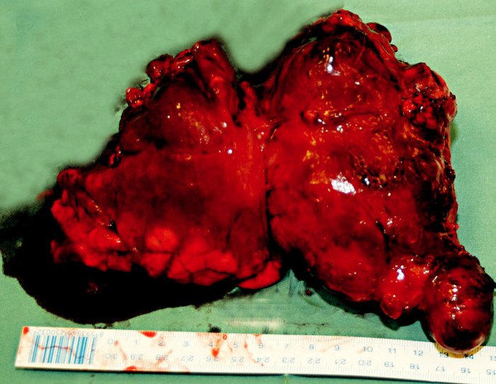 Vlastní resekát tumoru Fig. 4. The resected tumor