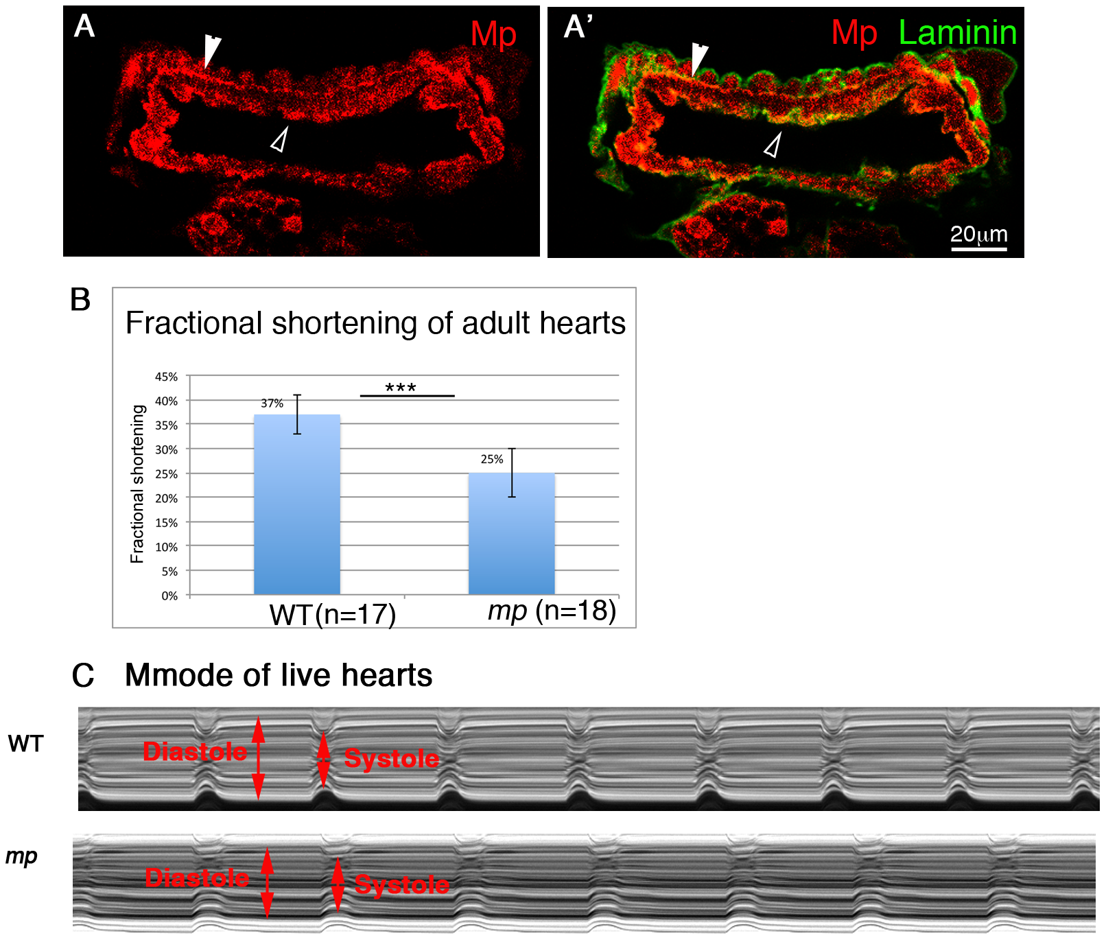 Mp activity is essential for proper heart contraction of adult fly hearts.
