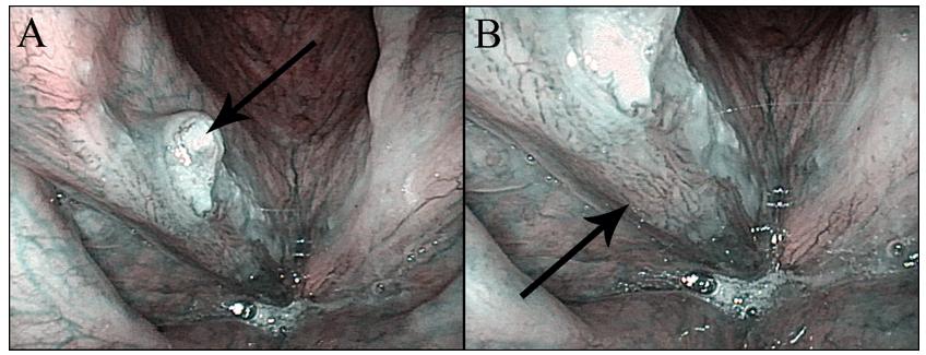 Obr. 2  Konvenční (nezvětšovací) NBI endoskopie – spinocelulární karcinom hlasivky: A – přehledný snímek s exofytickou částí tumoru (šipka), B – detail s patrnou patologickou vaskularizací v okrajích tumoru (šipka).