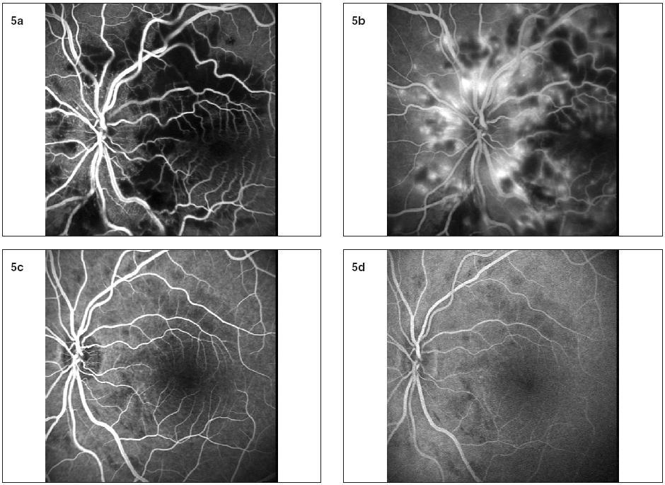 """a, b. Na fluoresceínovej angiografii ľavého oka v skorej fáze pozorujeme hypofluorescenciu spôsobenú nedostatočným plnením kapilár i výrazne blokovanú hypofluorescenciu v mieste """"cotton wool spots"""". V neskorých fázach vidno oblasti hyperflourescencie s presakovaním. c, d: Po 6 týždňoch vymizli rozsiahle oblasti kapilárnej neperfúzie i hyperflourescencie, avšak ešte pretrvávajú drobné oblasti hypofluorescencie"""