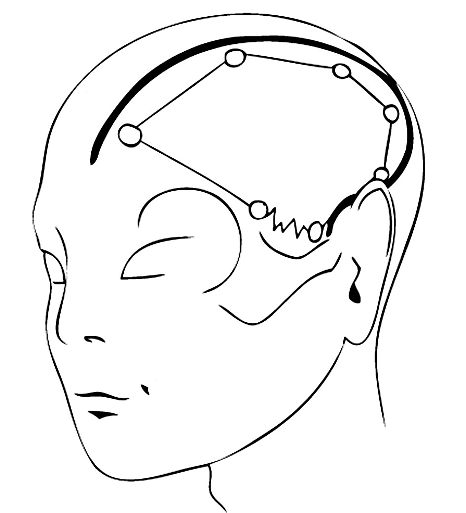 FTPO kožní řez začínající před tragem Pic. 4. FTPO skin section, originating frontally to the tragus