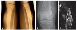 A: Nativní snímek zobrazující těžce kalcifikovanou juxtakortikální lézi metafýzy tibie s erozí kortikalis; v boční projekci patrné šíření do dřeňové dutiny (RTG). B: Nativní snímek distální metadiafýzy femuru s jemně mineralizovaným, výlučně periostálně uloženým tumorem a otokem přilehlých měkkých tkání (RTG). C: Rozsáhlý juxtakortikální nádor metafýzy femuru odtlačující měkké tkáně s masívní intraoseální propagací a doprovodnou dislokovanou zlomeninou (MRI).