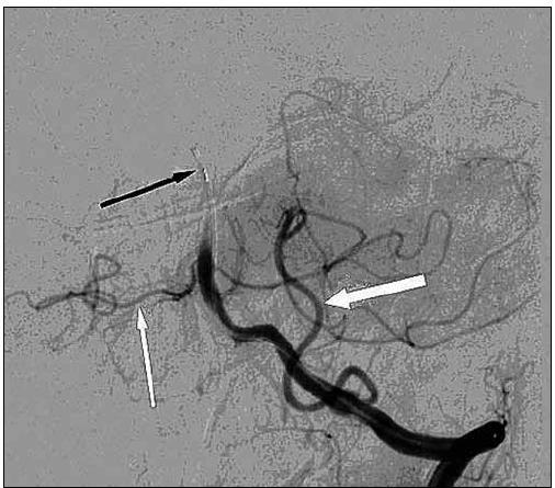 DSA levé vertebrální tepny – AP projekce. Uzávěr střední části bazilární tepny. Skrz uzávěr bazilární tepny zaveden mikrokatétr (černá šipka). Dobře se plní a. cerebelli inferior posterior vlevo (bílá tlustá šipka). A. cerebelli inferior anterior vpravo (bílá tenká šipka).