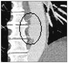 Reimplantace interkostálních tepen (CT-AG pooperační kontrola) Fig. 10. Reimplantation of intercostal arteries (CT-AG postoperative assessment)