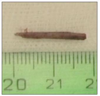 Kazuistika 2: cizí těleso dřevitého charakteru extrahované z očnice.