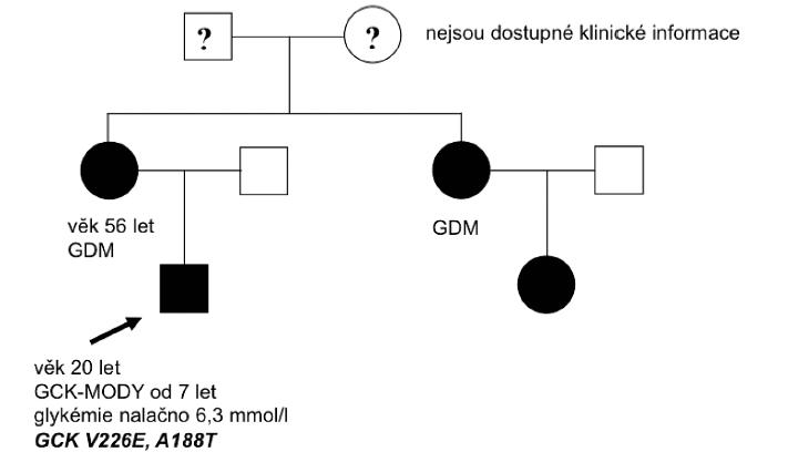 Rodokmen rodiny nesoucí mutaci v genu GCK. Probandem byl 7letý chlapec s náhodně zachycenou zvýšenou lačnou glykémií. Matka a teta dítěte byly vedeny pod diagnózou gestačního diabetu. GCK-MODY: glukokinázový diabetes, GDM: gestační diabetes mellitus