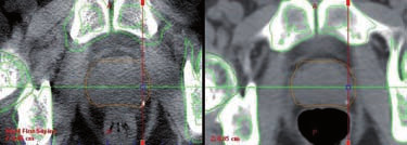 kV cone-beam CT (CBCT) – radioterapie řízená obrazem (IGRT) 