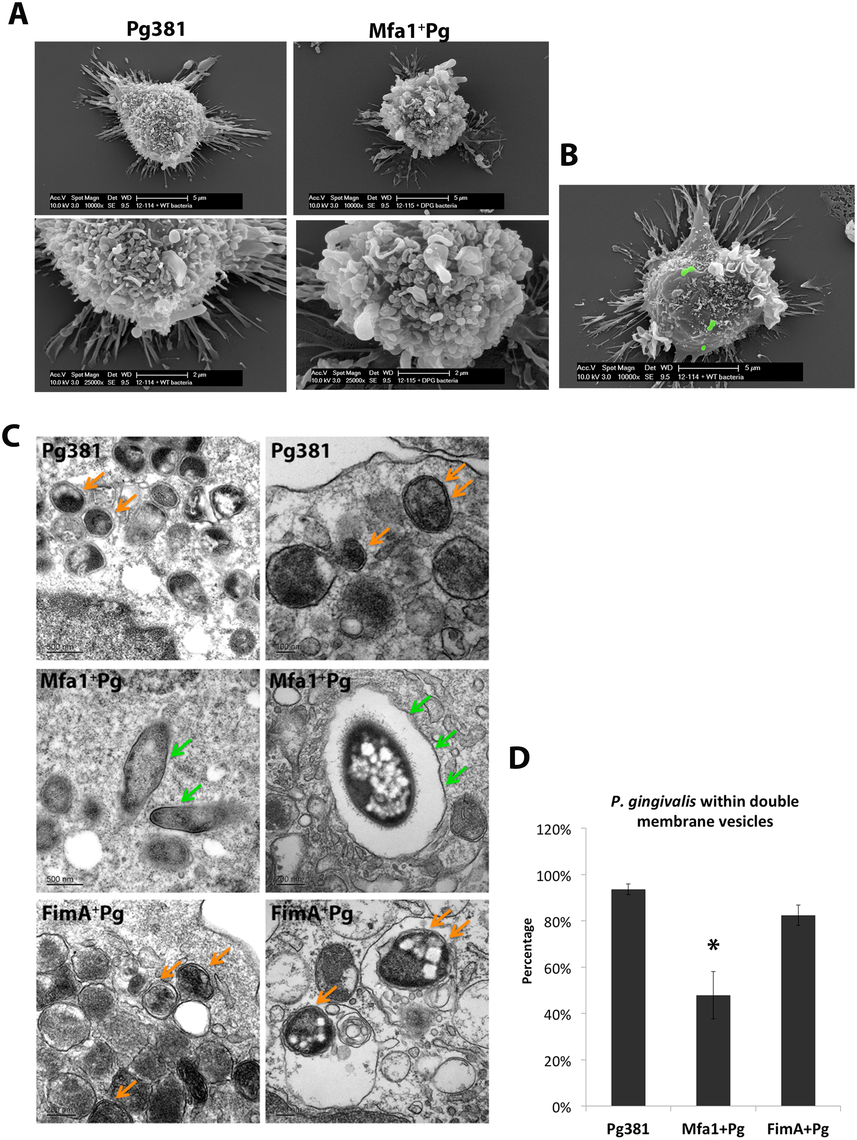 Formation of double-membrane vesicles in <i>P. gingivalis</i>-infected MoDCs.