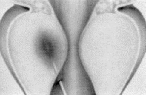 Schéma zavedení sondy do tkáně prostaty při ILC.