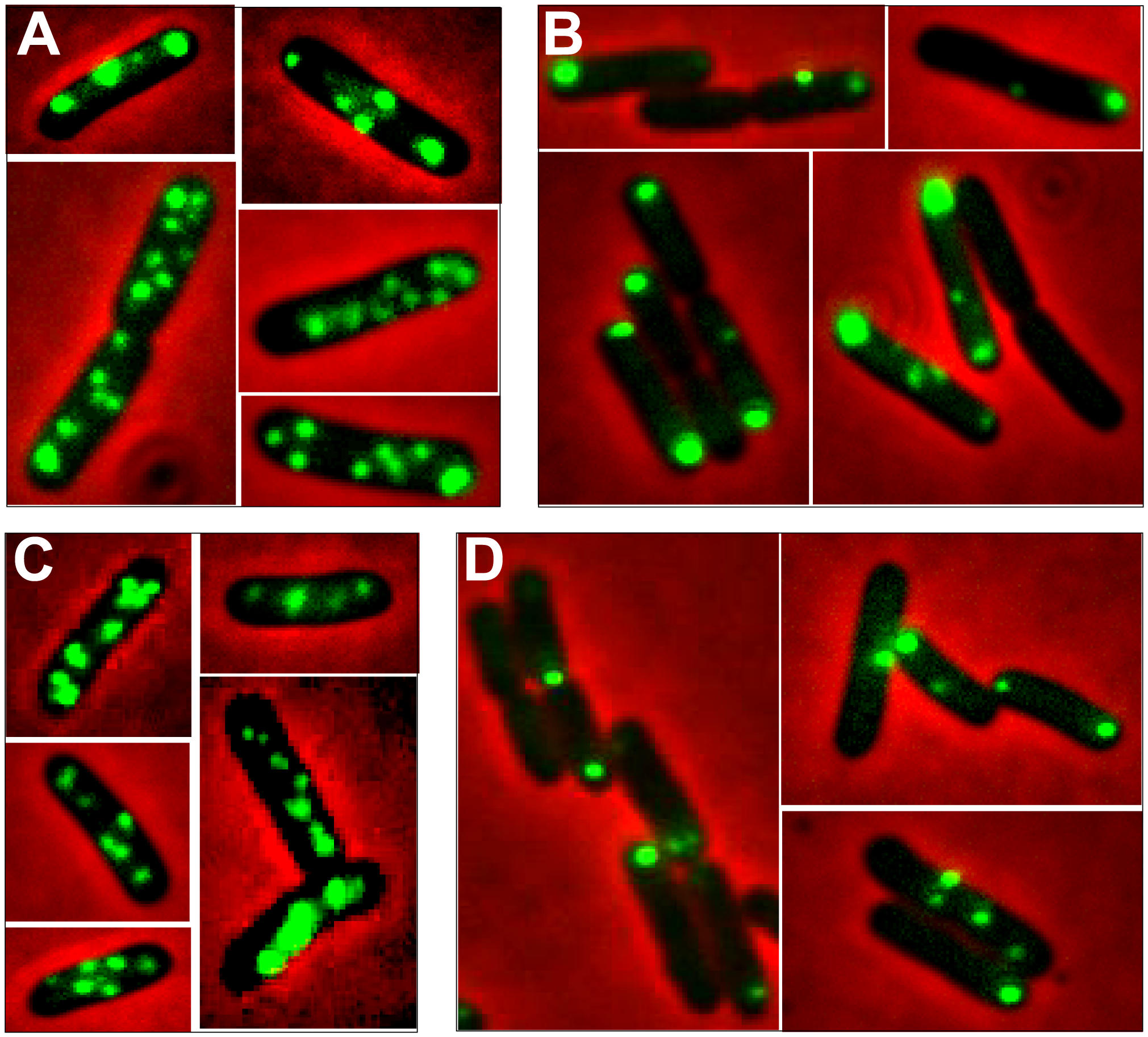Localization of plasmid R388 and derivatives in live <i>E. coli</i> cells using a <i>parS</i>/GFP-ParB system.