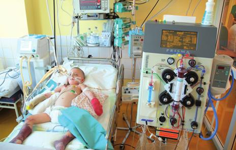 CVVHDF (kontinuálna veno-venózna hemodiafiltrácia) u kriticky chorého dieťaťa. Fig. 2. CVVHDF in critically ill patient.