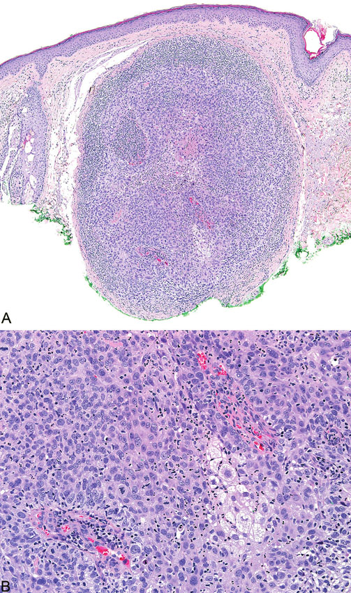 Sebaceózní karcinom, který je z velké části nekroticky změněn (A); maligní cytologické detaily zahrnují nukleární pleomorfismus a četné atypické mitózy (B)