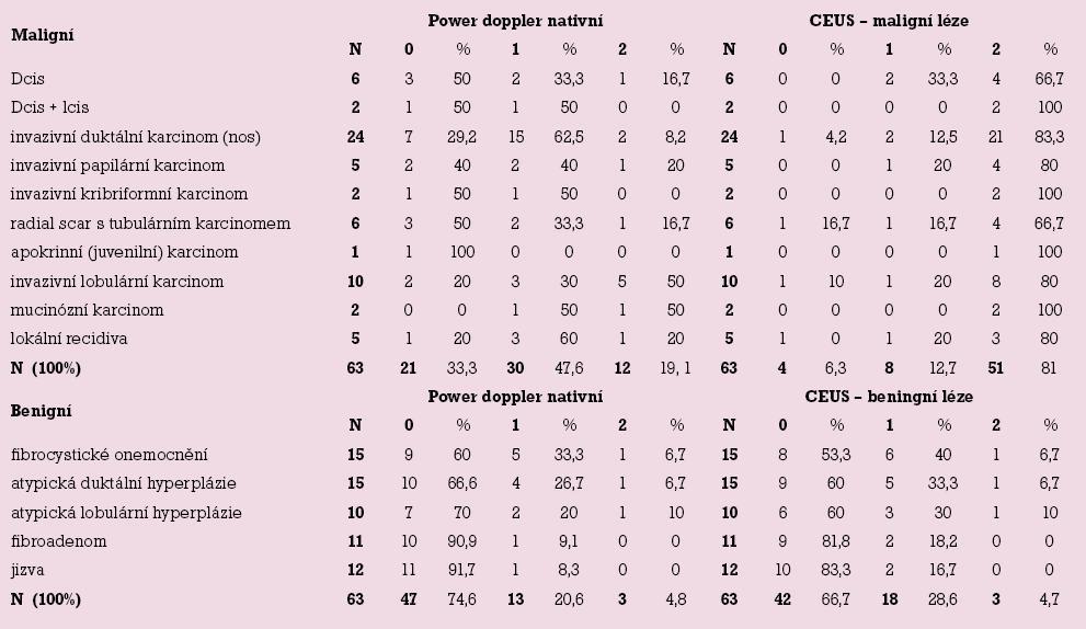Vaskularita 63 maligních a 63 benigních lézí mléčné žlázy.