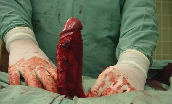 Plikace - stav po dorzální plikaci ve 4 etážích ze strany.