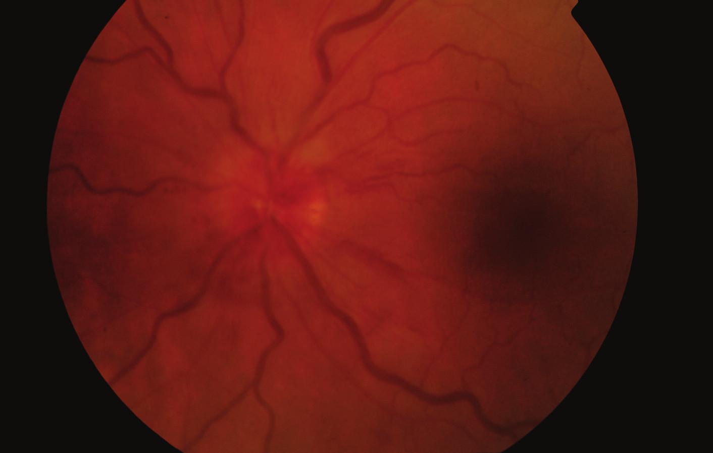 Fundus levého oka při zahájení léčby