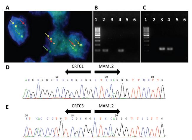 Pozitivní průkaz translokací t(11;19) a t(11;15) u mukoepidermoidního karcinomu parotis, low grade.