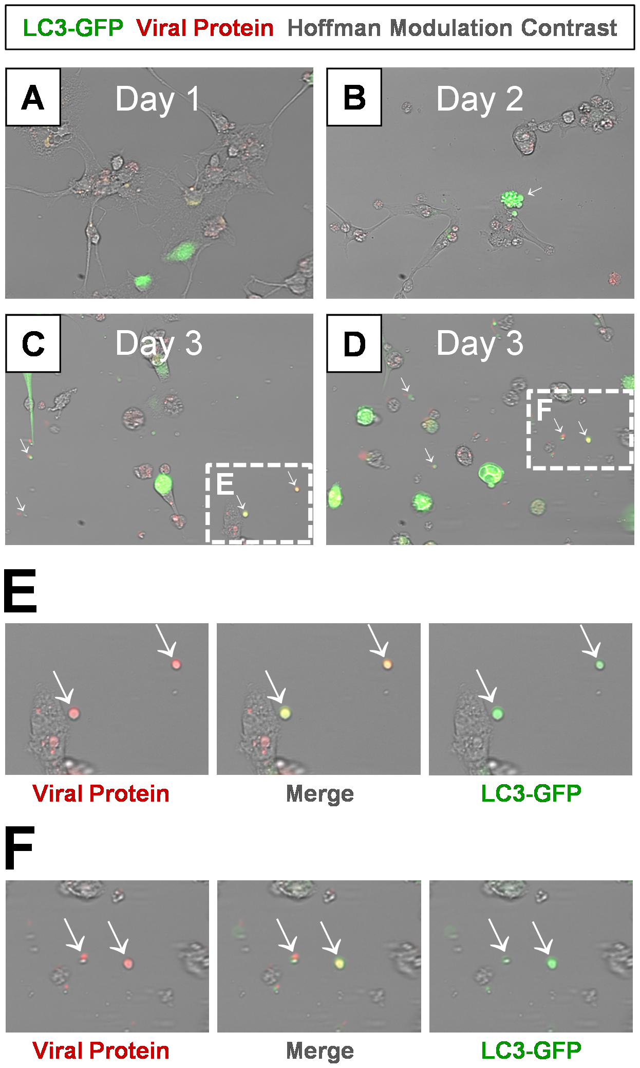 Detection of LC3 protein in shed EMVs containing viral protein.