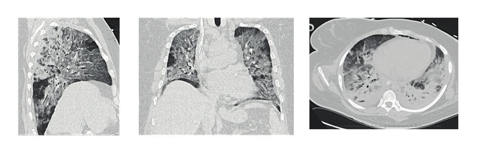 HRCT plic s nálezem ARDS (difuzní nehomogenní zastření plicního parenchymu), těžké bilaterální postižení při H1N1 intersticiální pneumonii