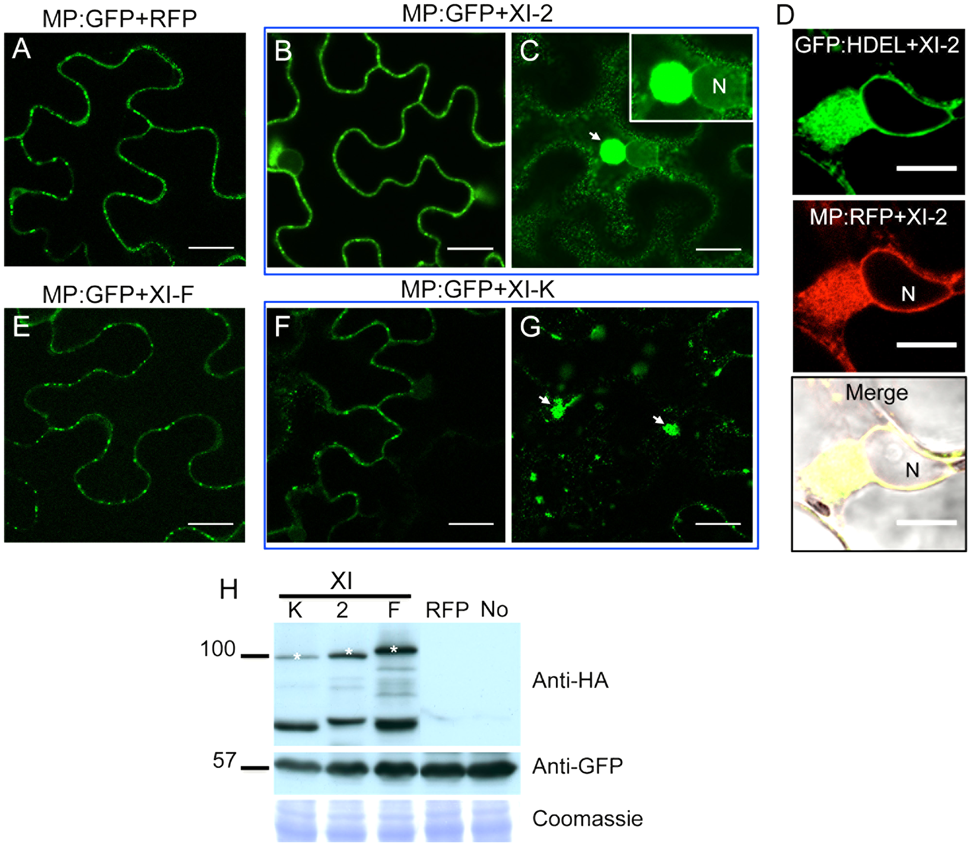 Transient expression of myosin XI-2 and XI-K tails changes the accumulation pattern of the MP.