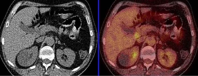 Kontrolní PET vyšetření po léčbě, retroperitoneum, květen roku 2008, nález zcela negativní – kazuistika č. 3.