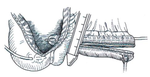 Dokončení zúžení eferentní větve, odstranění tkáně GIA staplerem.