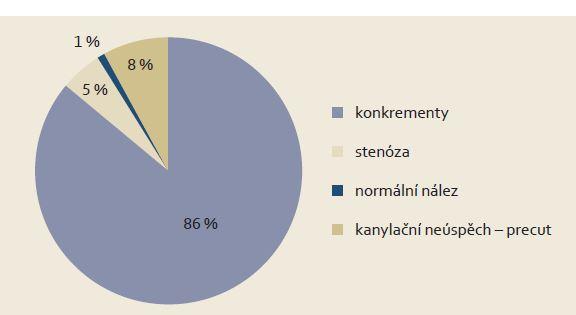 Nálezy u pacientů indikovaných pro akutní biliární pankreatitidu v roce 2012. Graph 4. Findings in patients indicated for acute biliary pancreatitis in 2012.