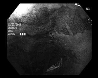 Endoskopická kontrola po dvou etapách endoskopického ošetření, zbytkový jazýček a ostrůvky Barrettova jícnu s nepravidelnou strukturou v NBI zobrazení. Fig. 5. Residual Barrett's mucosa with irregular pattern in NBI after two sessions of endoscopic therapy.